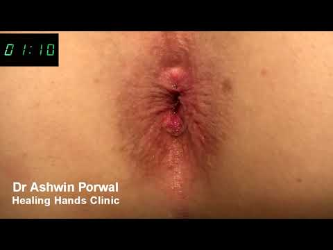Laser Sphincterolysis for severe Anal Spasm | Cure for Anal Fissure | Dr Ashwin Porwal Healing Hands