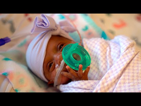 saybie---world's-smallest-baby-ever---weighs-245-grams