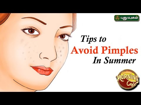 Tips to Avoid Pimples In Summer அழகு கலை For Beauty Morning Cafe 03-04-2017 PuthuYugamTV Show Online