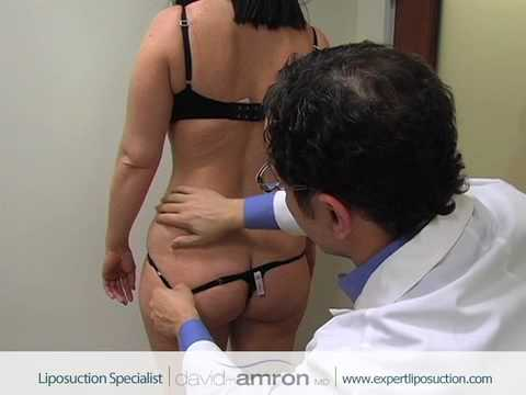Flank Liposuction Surgery Love Handles Lipo Surgeon Dr. David Amron