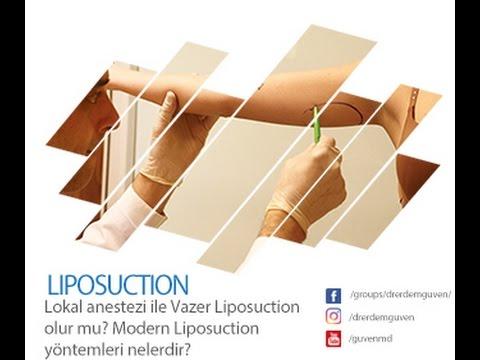 Lokal Anestezi İle Vazer Liposuction Olur mu? Modern Liposuction Yöntemleri Nelerdir?