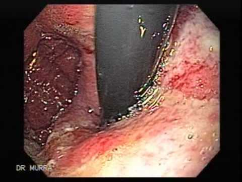 Are All Stomach Polyps Cancerous