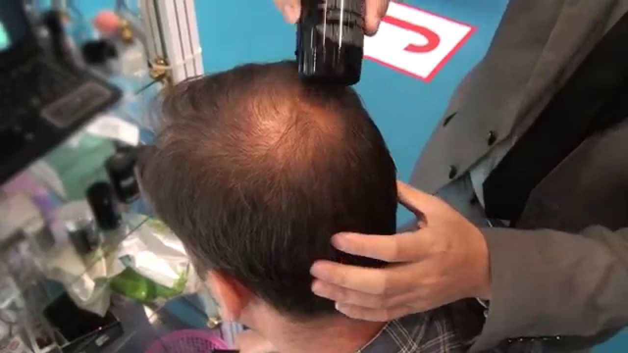 hair thinning on the crown - youtube