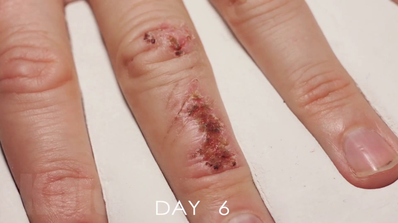 Wound Healing Time Lapse