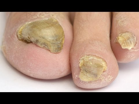 Considering a Laser Treatment For Toenail Fungus? Watch This Video FIRST