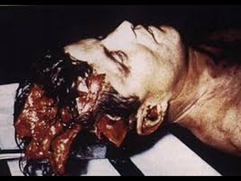 JFK File Release Head Wound  Confusion Now Cleared Up, Conspiracy Over.