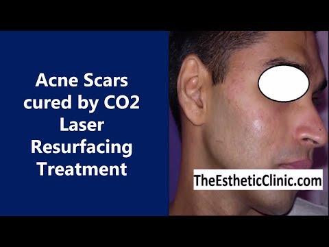 Patients Undergone Acne Treatments Using Co2 Laser Skin Resurfacing