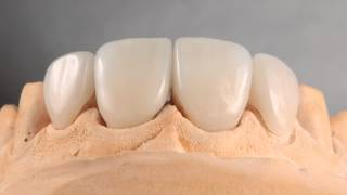 Виниры стоматология Астана Prestige Dental Clinic   Daniele Rondoni    ITALY    SAVONA(Протезирование зубов Астана. Виниры изготовленные Знаменитым зубным техником Daniele Rondoni ITALY SAVONA, в Стомат..., 2014-10-22T17:52:36.000Z)
