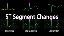 ECG Interpretation Basics continued - ST Segment Changes, Animation.
