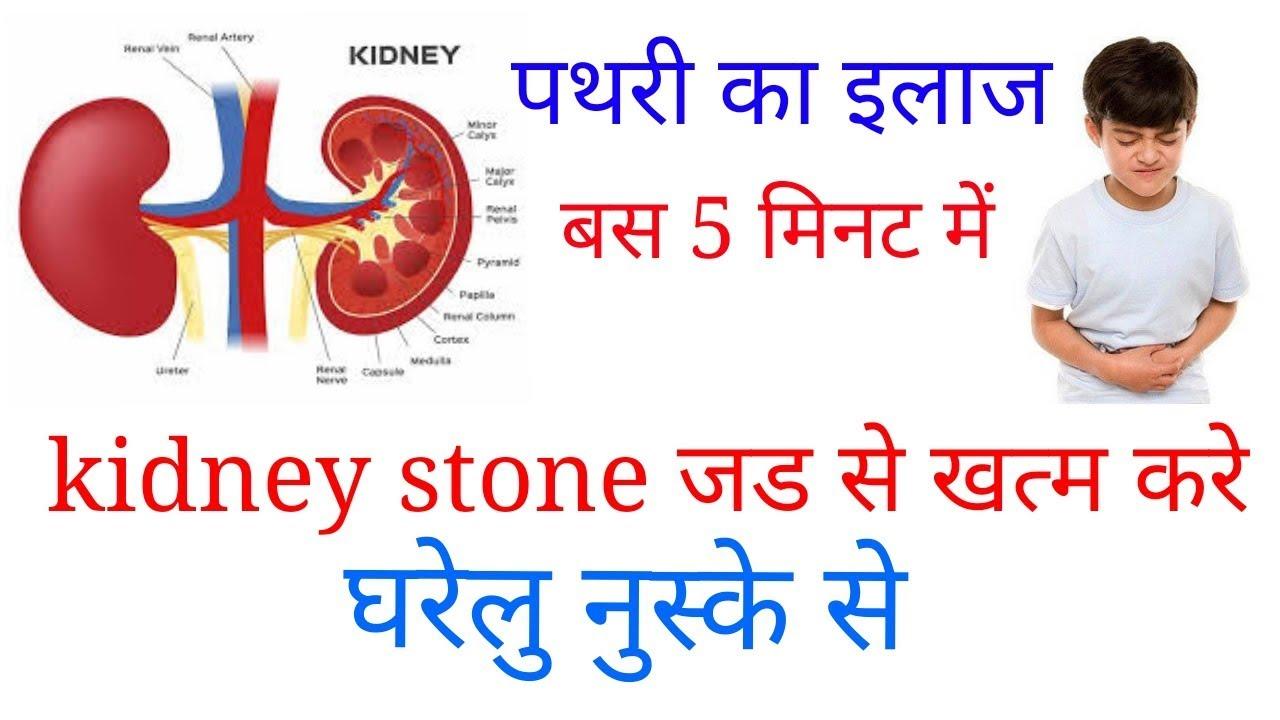Pathari Ka Ilaj Kidney Stone Ka Ayurvedic Upay 2 À¤® À¤¨à¤Ÿ À¤® À¤ªà¤¥à¤° À¤• À¤‡à¤² À¤œ Youtube