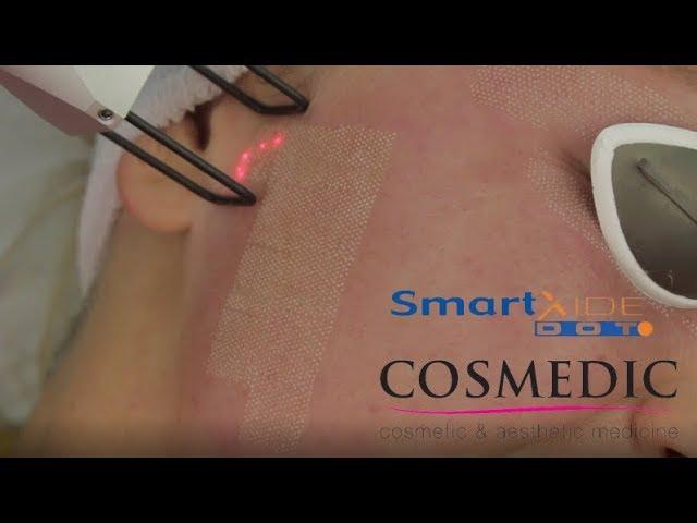 Cosmedic SmartXide Dot