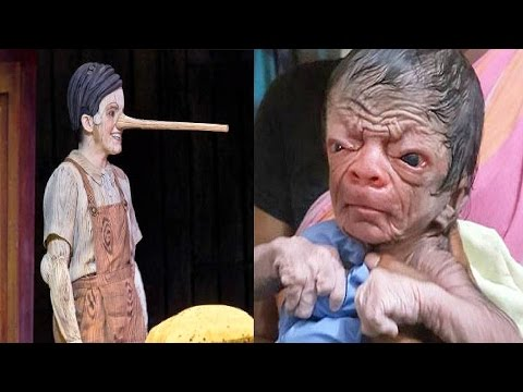 8 Real Life Cartoonic People With Strange Medical Conditions