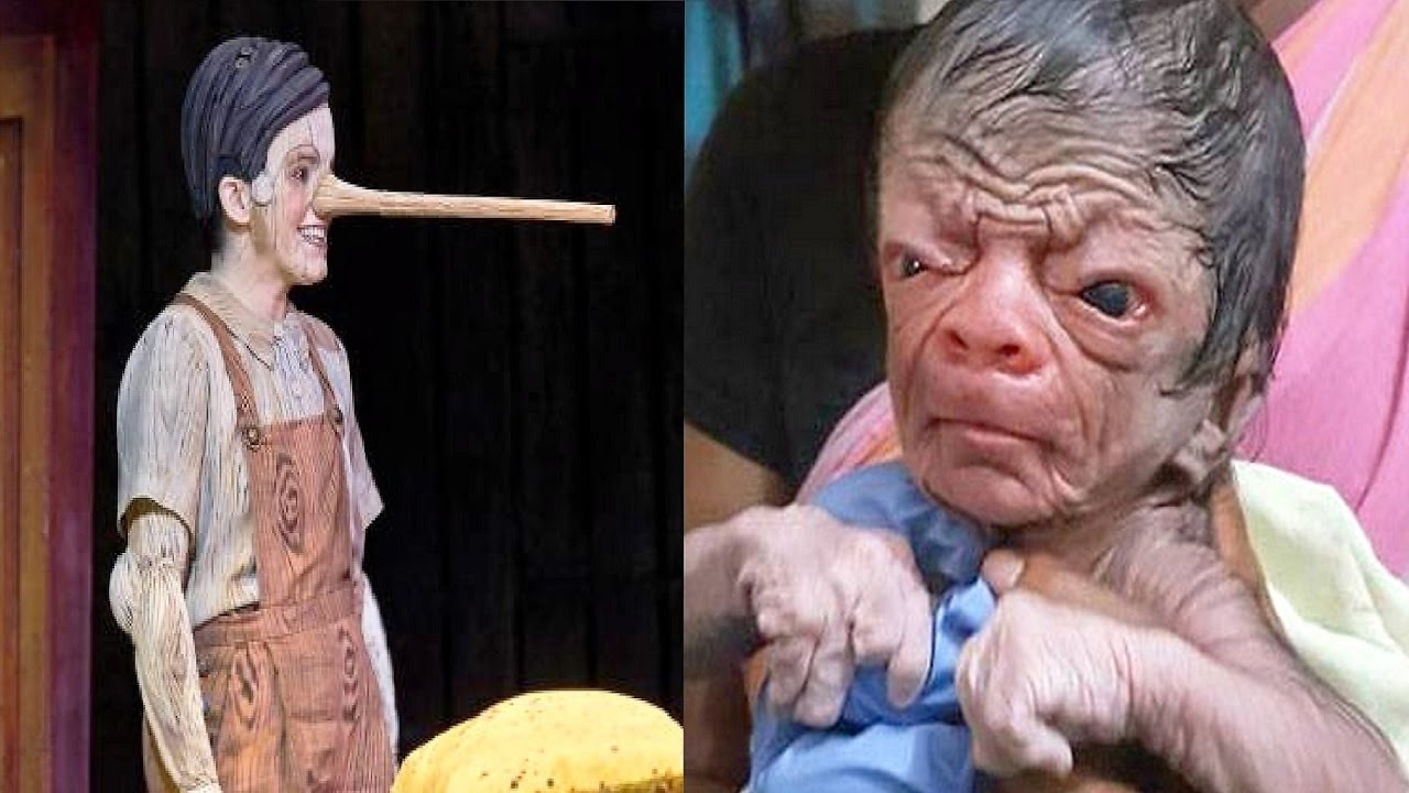 8 Real Life Cartoonic People With Strange Medical Conditions - የአለማችን 8 በጤና መታወክ ምክንያት የምናውቀውን አይነት