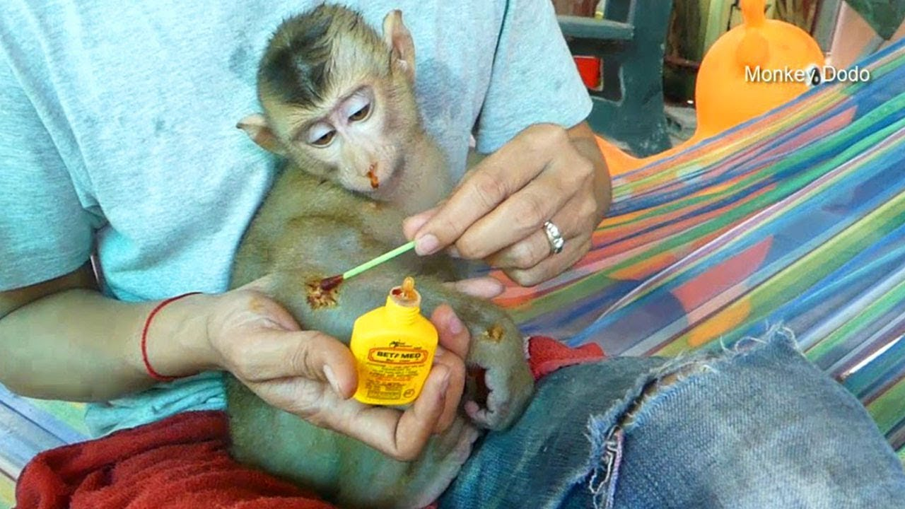 Ohh Baby Monkey Dodo Look Very Sad When Dad Use Medicine To Treat His Skin