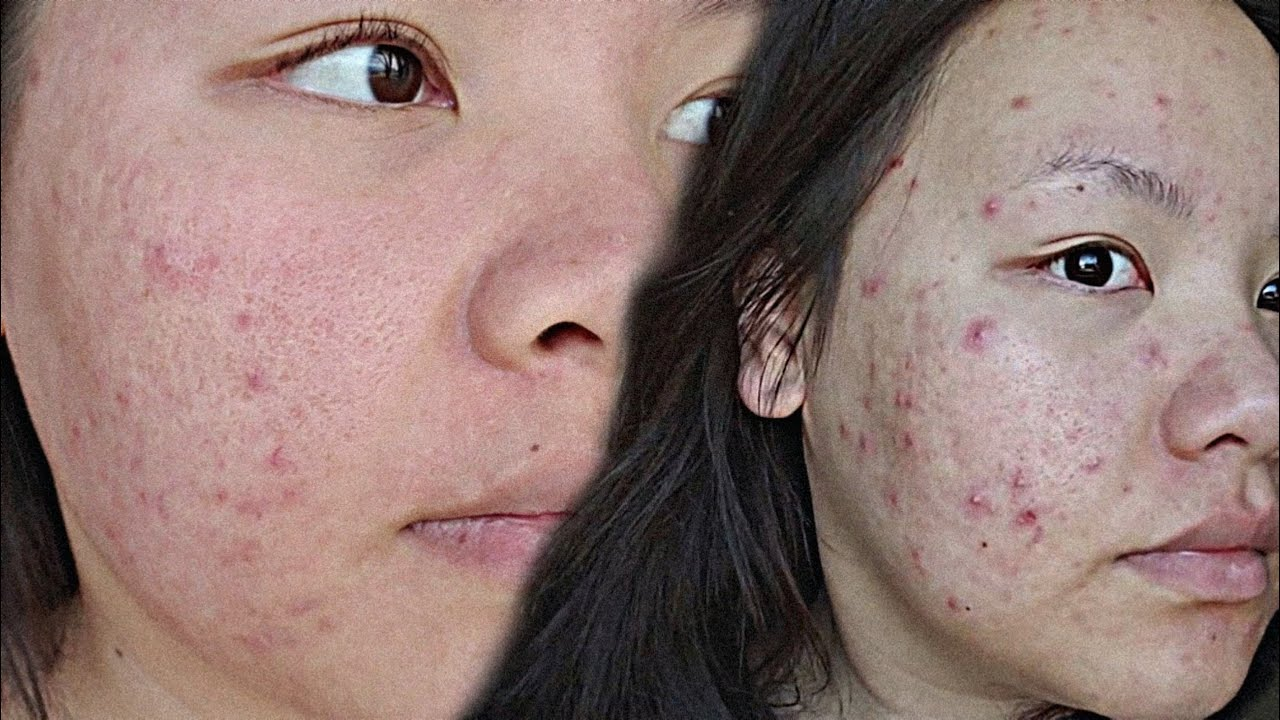 Teen acne scars