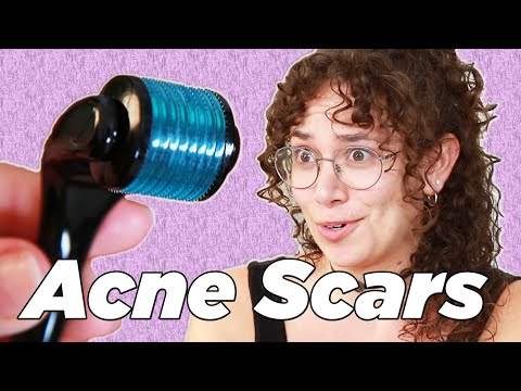 People With Acne Scars Try Micro-Rolling