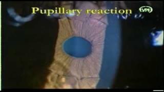 laser iridotomy.DAT