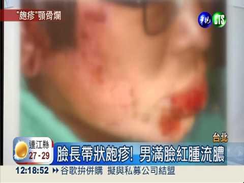 20130621帶狀皰疹病毒感染 導致口瘍併下顎骨壞死   Doovi