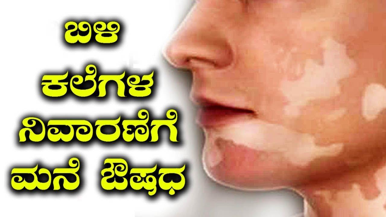 Vitiligo ayurvedic treatment in bangalore dating