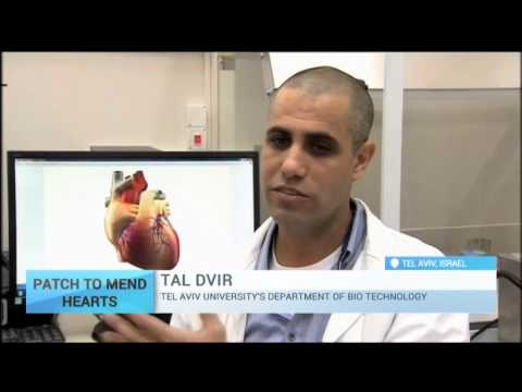 Bionic Heart Patch: New approach could replace heart transplant