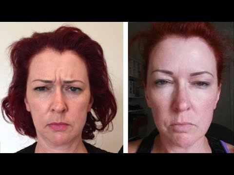 How to treat frown lines with anti-wrinkle injections. Dr Jonathan Brown explains all