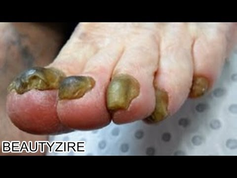 Black Yellow White Severe Toenail Fungus Treatment - How To Treat ...