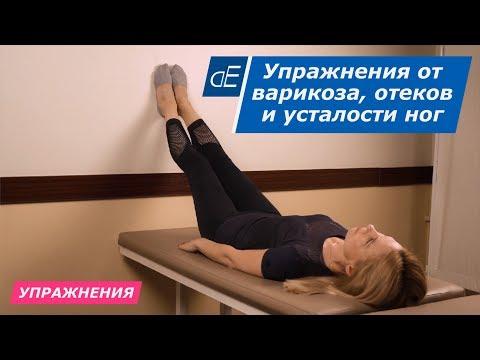 Упражнения от варикоза, усталости ног и отеков ног. Избавляемся от застоя крови легко и просто.
