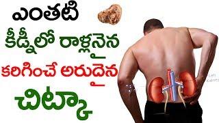 ఎంతటి రాళ్లనైనా కరిగించే అరుదయిన చిట్కా  || Kidney Stones || Health Tips