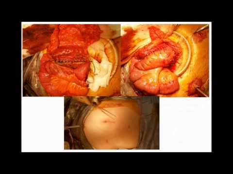 Laparoscopic Resection of Crohn's Ileitis involving Sigmoid Colon, Left Salphinx & Urinary Bladder.