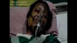 sasural walo ne jala kar mara, mandla, mp news, bhopal news,