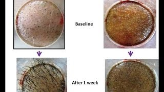 Scientific Proof of Cure for Male/Female Pattern Baldness Naturally - Better Than Minoxidil