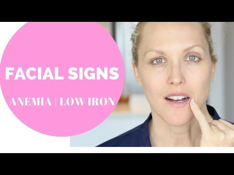 FACIAL SIGNS OF ANEMIA, LOW IRON   HEAVY PERIODS