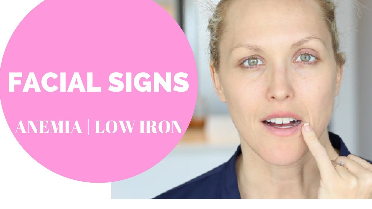 FACIAL SIGNS OF ANEMIA LOW IRON