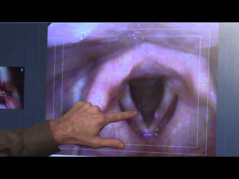 Laryngology 101 HD - Hemorrhagic vocal cord polyps, part I, HD version Mp3