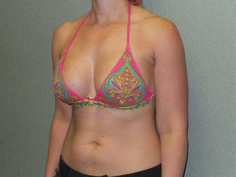 4e18a11418a Breast Augmentation Davenport   Breast Implant Options Iowa