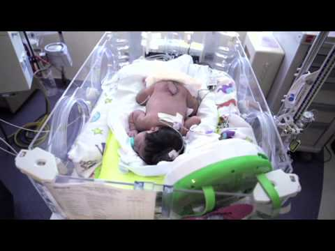Newborn Ba with Spina Bifida Undergoes Multiple Surgeries