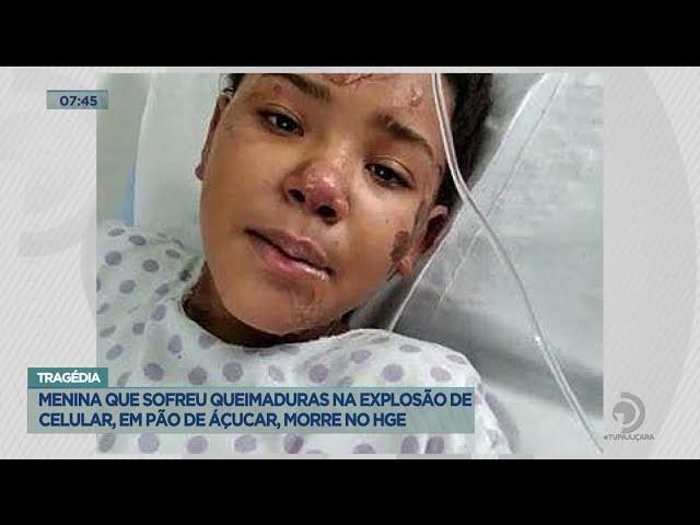 Tragedia: Menina que sofreu queimaduras na explosão de celular, em Pão de Açúcar, morre no HGE