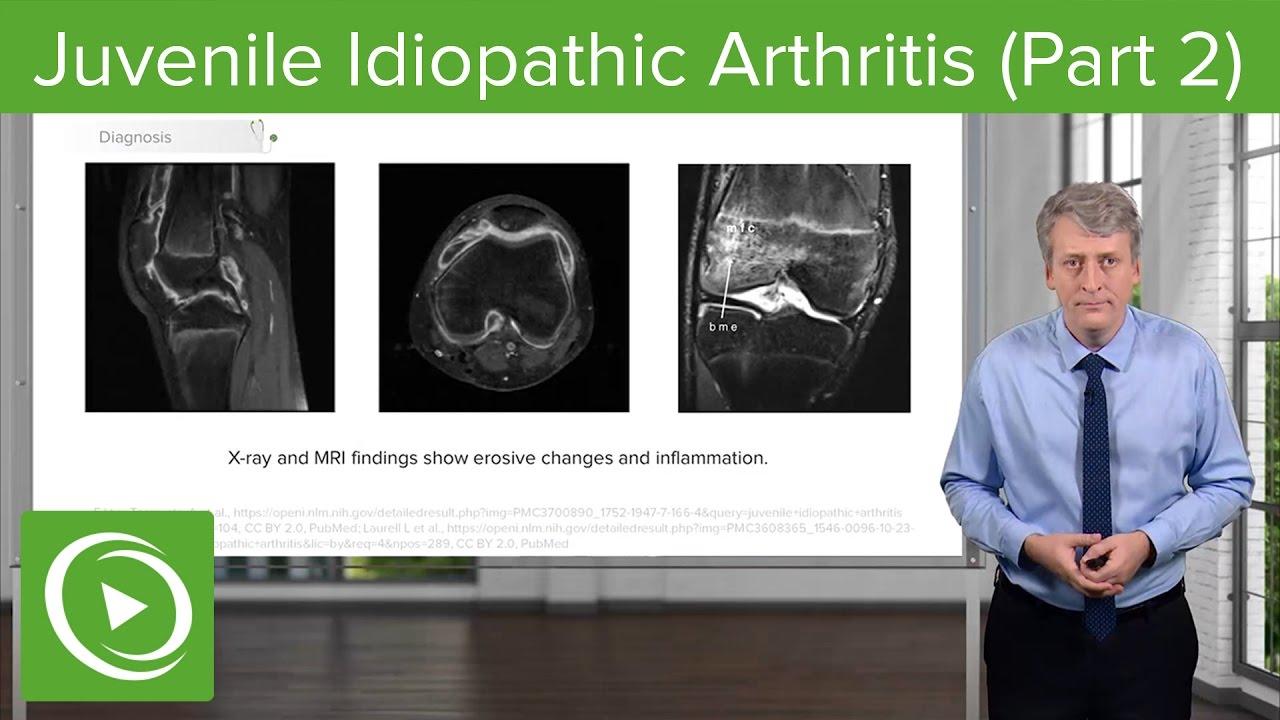 Juvenile Idiopathic Arthritis (JIA): Diagnosis & Management – Pediatrics | Lecturio