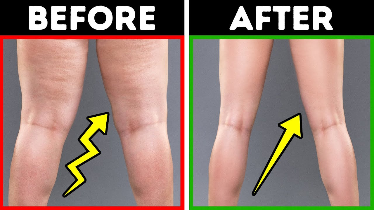 how to get rid of fat knees with exercise