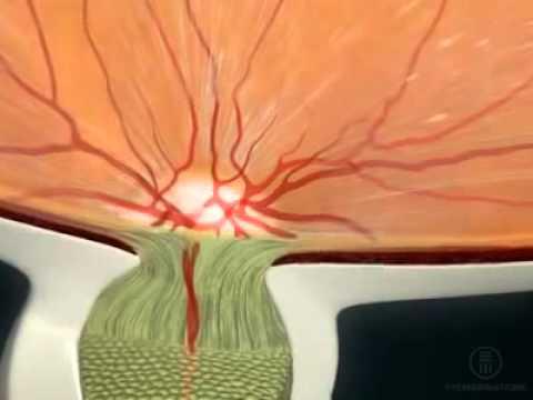 Зрительный нерв и диск зрительного нерва (ДЗН): строении и функции ...
