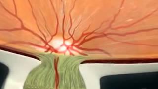 видео Глазной нерв