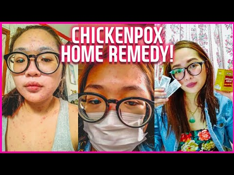 Home Remedies For Chicken Pox - Myhiton