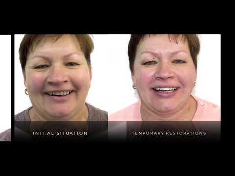 Протезирование зубов , коррекция дёсны , изменение положение и формы зубов , керамические коронки