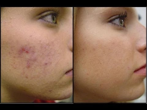 How To Cure Acne Naturally -- Best Treatment for Acne