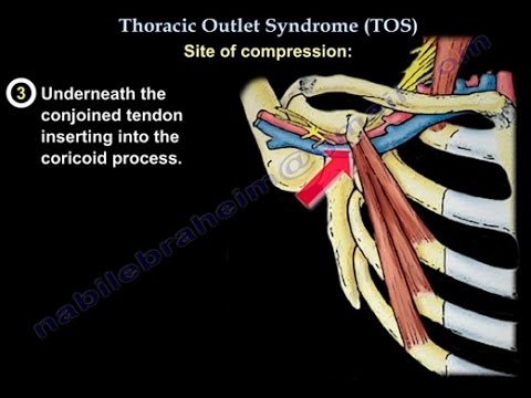 Thoracic Outlet Syndrome - Everything You Need To Know - Dr. Nabil Ebraheim