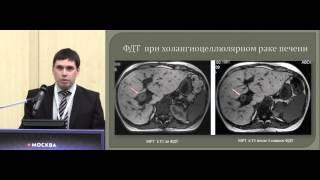 Малоинвазивные методы лечения при опухолевом поражении печени(, 2016-01-29T10:29:16.000Z)