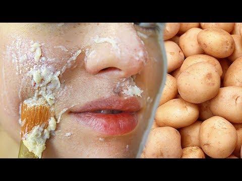 КАРТОФЕЛЬНАЯ МАСКА ДЛЯ ЛИЦА 🥔 Как бюджетно отбелить кожу и убрать морщины 🌴 POLI NA PALME