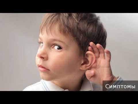 Нейросенсорная тугоухость. Как лечить нейросенсорную тугоухость.