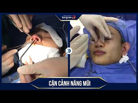 CẬN CẢNH quá trình Nâng mũi tại Kangnam