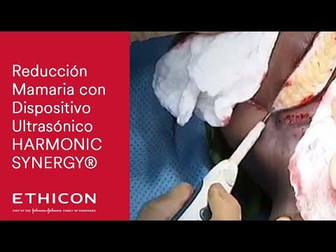 HEMICOLECTOMIA DERECHA LAPAROSCOPICA - ANASTOMOSIS INTRACORPOREA - from YouTube · Duration:  4 minutes 13 seconds